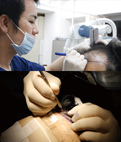 移植箇所のヘアラインのデザインを医師が行います。