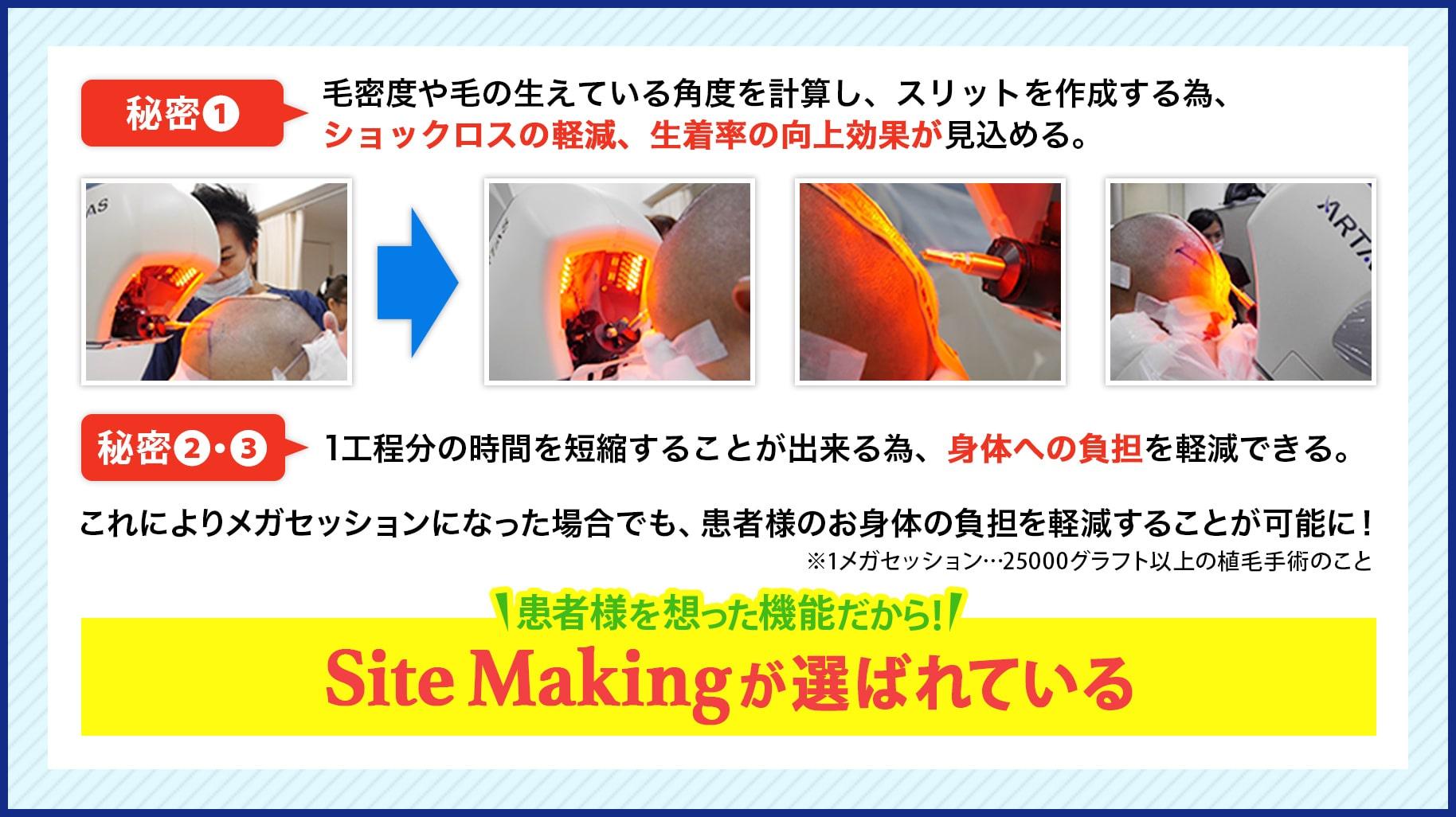 SiteMakingが選ばれている