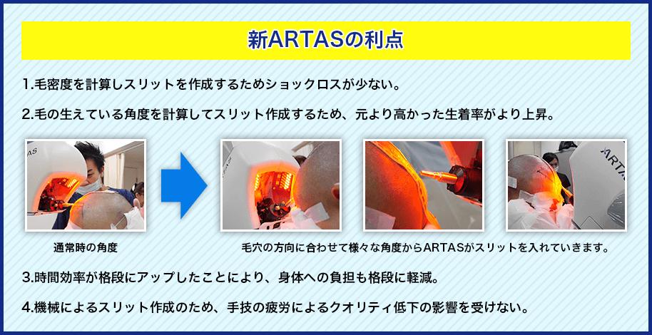 新ARTASの利点